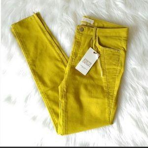 Zara Z1975 Mid Rise Skinny Fit Jeans